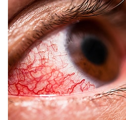 Over-the-Counter Treatments for Conjunctivitis (pink eye)